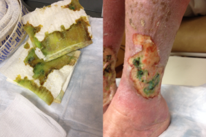 Wound Wednesday - July 23, 2015