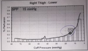 Right SPP thigh