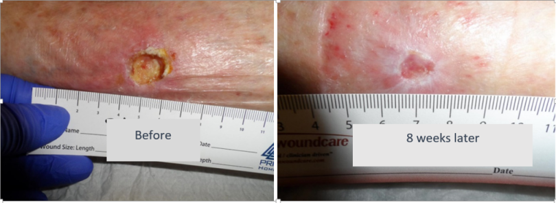 Brachytherapy case 1